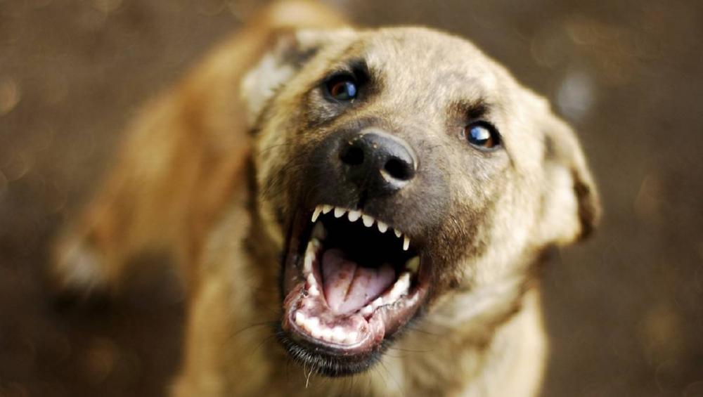 В Камышине в больницу доставлена женщина с рваными ранами после нападения бродячей собаки в центре города